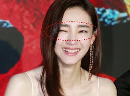 王丽坤恋上林更新后整形失败吗
